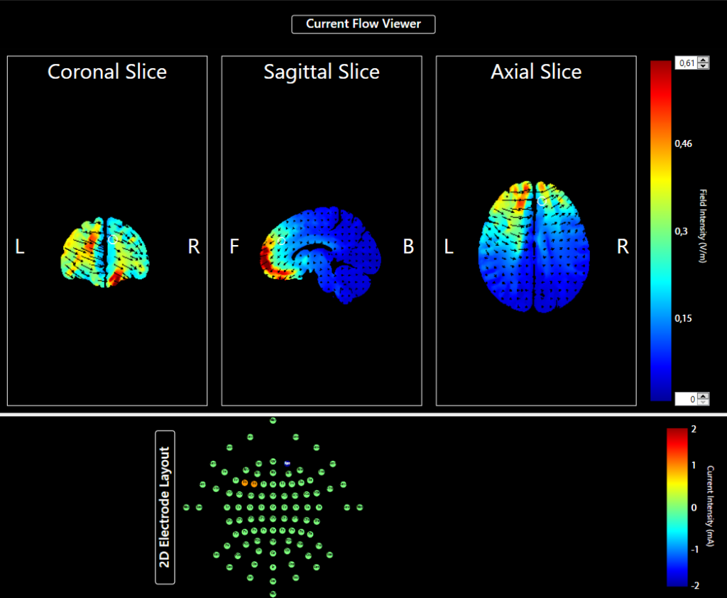 Hirnbilder, die den Elektrizitätsfluss zwischen den tDCS-Elektroden sichtbar machen